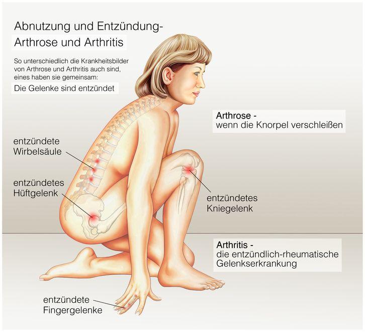 Arthrose und arthritis ursachen