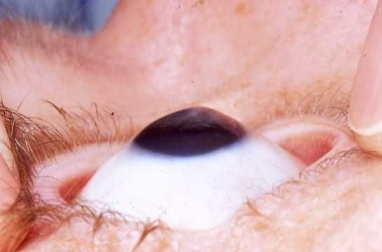 Keratoconus eye.jpg