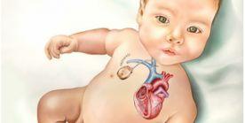 Kinderherzchirurgie – Überblick über die Möglichkeiten