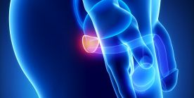 Radikale Prostatektomie bei Prostatakrebs