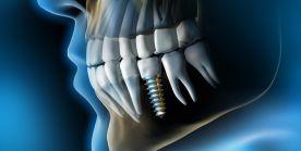 Oralchirurgie und Implantologie