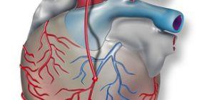 Bypass-Operation bei koronarer Herzkrankheit